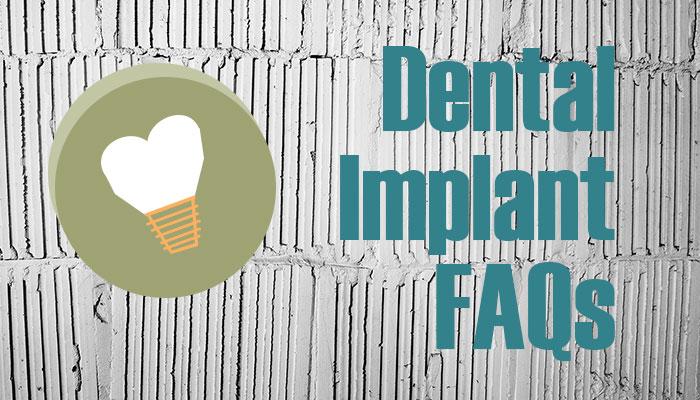 dental-implant-faqs-williamsville